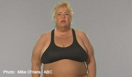 Extreme Weight Loss, Kathie